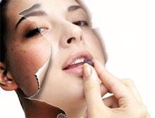 появление пятен на коже лица и как от их избавиться