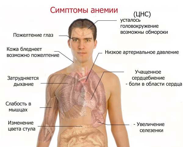 Симптомы, характеризующие анемию (низкое содержание гемоглобина в крови)